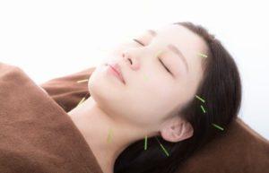 写真:鍼治療の様子